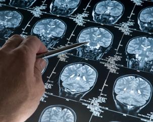 Speranțe pentru cei peste 10.000 de maramureșeni care suferă de epilepsie