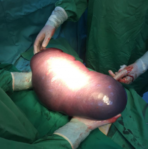 O splină de 6,5 kg, înlăturată  de medicii băimăreni printr-o operație complexă care a durat două ore