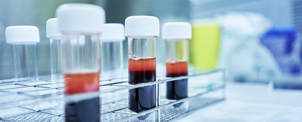 Coreea de Sud va trimite 2.000.000 de teste pentru coronavirus în România; anunțul autorităților române